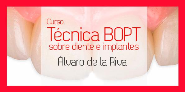 Técnica BOPT sobre diente e implantes