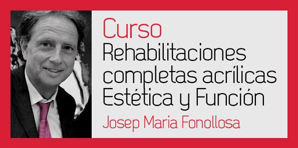 Rehabilitaciones completas acrílicas – Josep Maria Fonollosa
